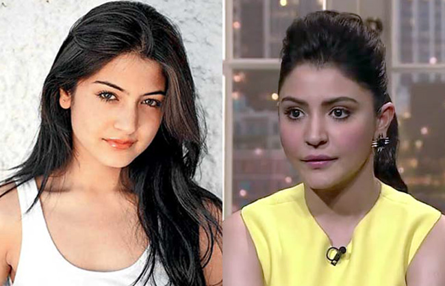 bollywood-actresses-plastic-surgery-gone-wrong-before-and-after-pictures-anushka-sharma