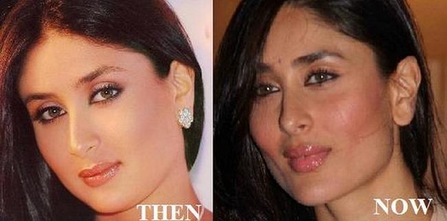 kareena-kapoor-plastic-surgery