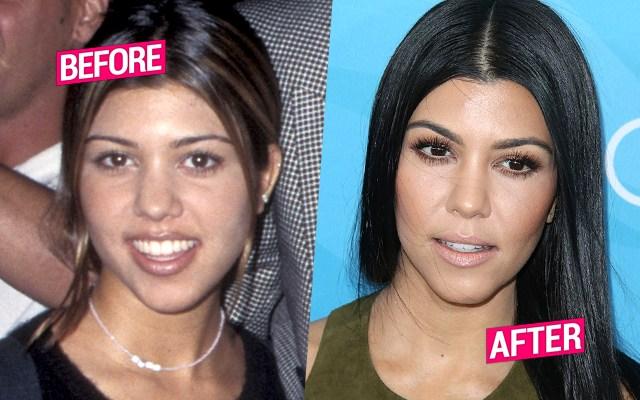 kourtney-kardashian-plastic-surgery-pp