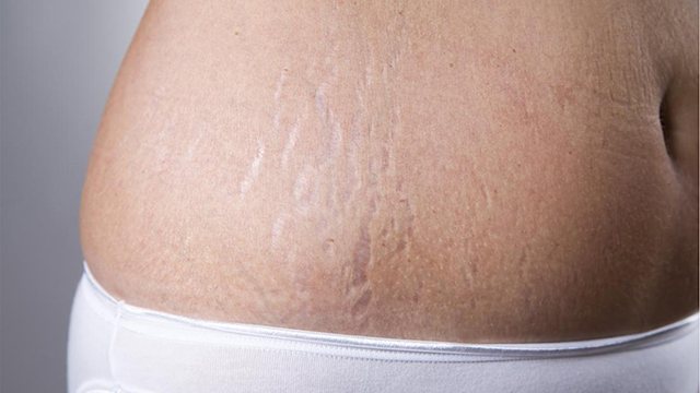 Cures-Stretch-Marks