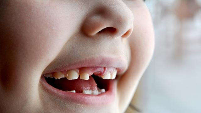 For-Dental-Problems