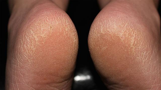 Heals-Cracked-Feet