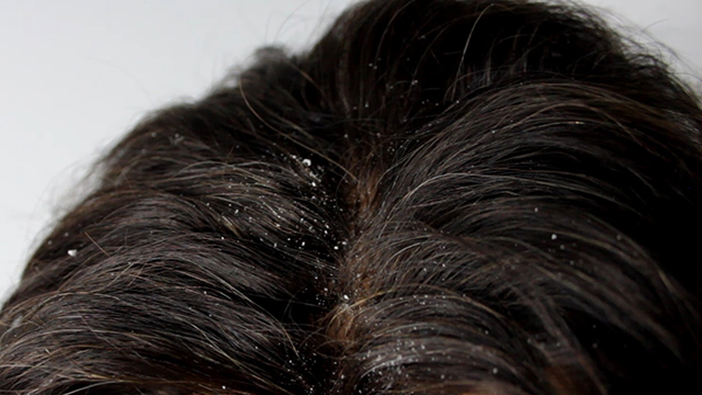 Helps-Eliminate-Dandruff