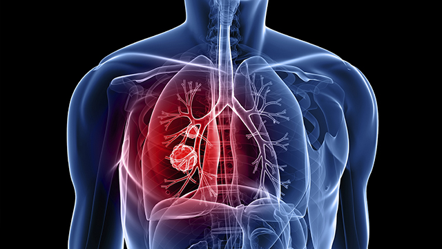 Improves-Respiratory-Health