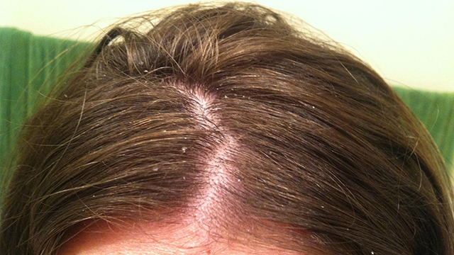 Treatment-of-Dandruff