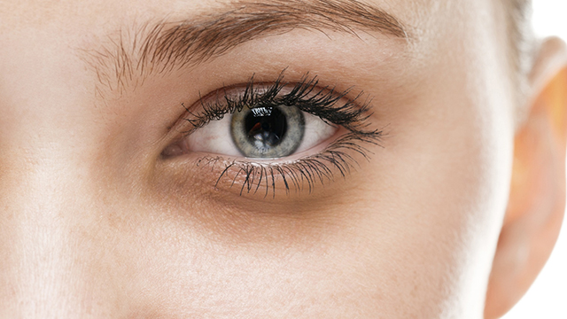 Treatment-of-Dark-Circles