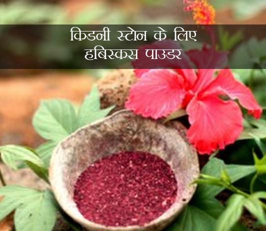 Hibiscus Powder for Kidney Stone ke fayde aur nuksan in hindi