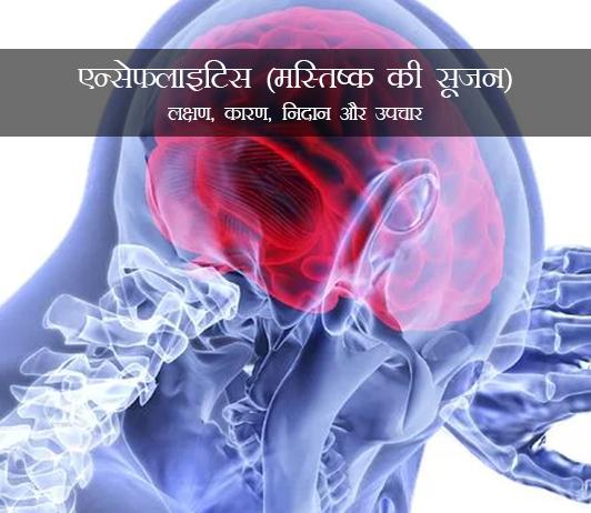 Encephalitis in Hindi