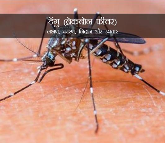 Dengue in Hindi