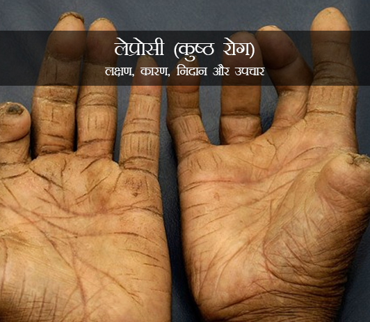 Leprosy in Hindi