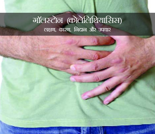 Gallstones in Hindi