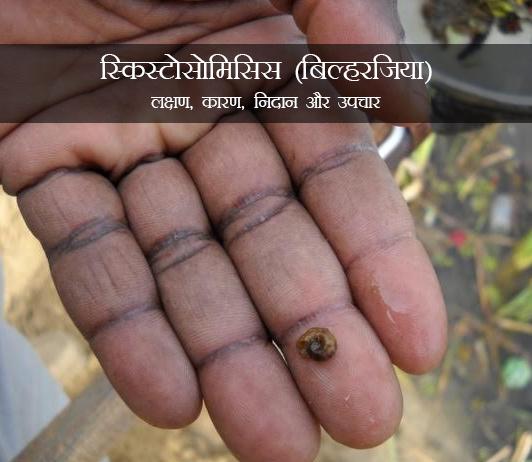 Schistosomiasis in Hindi