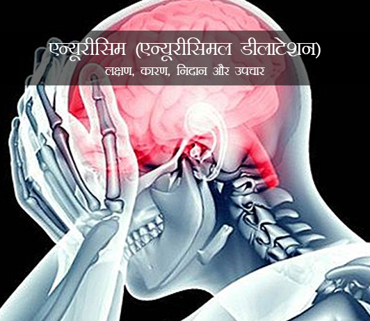 Aneurysm in Hindi