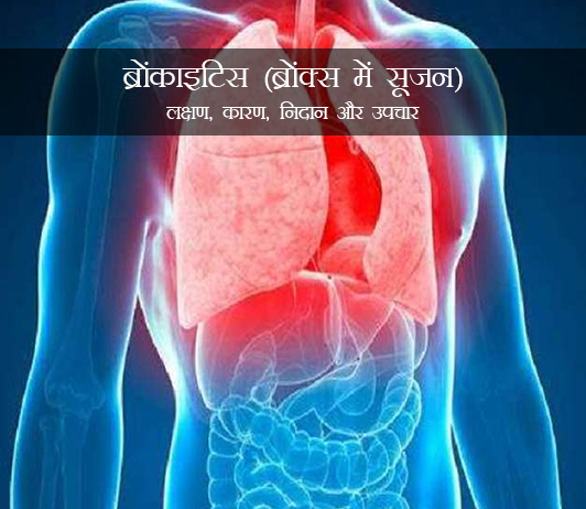 Bronchitis in Hindi