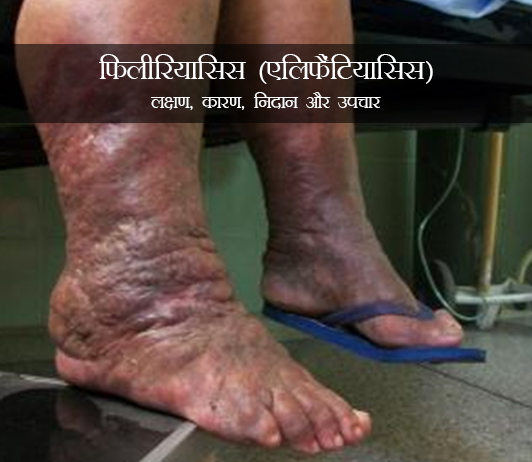 Filariasis in Hindi