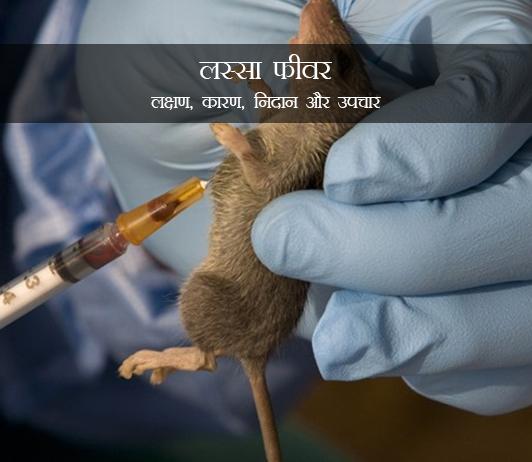 Lassa Fever in Hindi