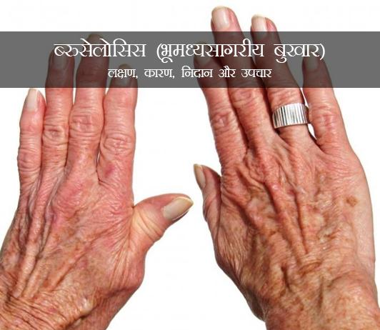 Brucellosis in Hindi