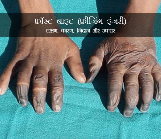 Frost Bite in Hindi