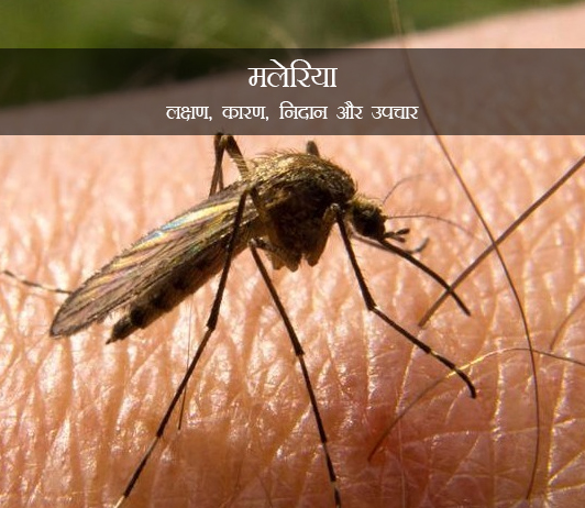 Malaria in Hindi