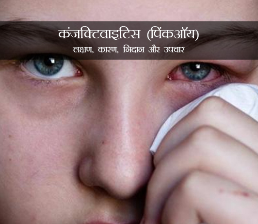 Conjunctivitis in Hindi