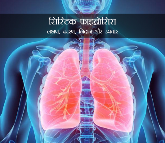 Cystic Fibrosis in Hindi