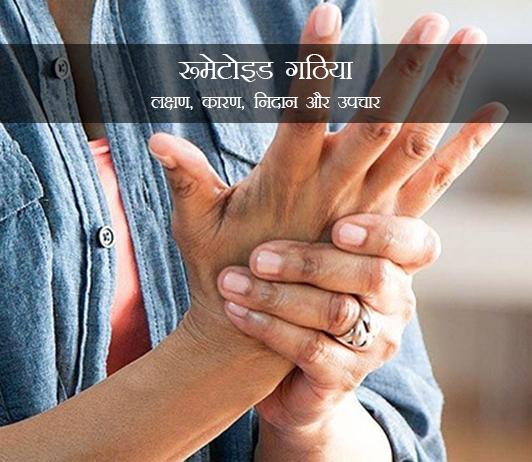 Rheumatoid Arthritis in Hindi