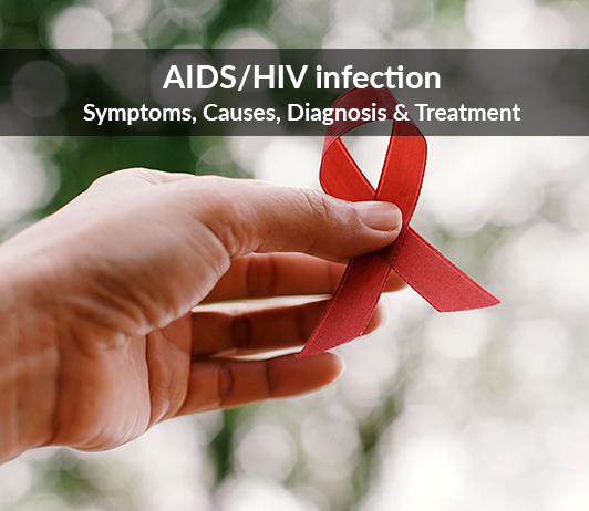AIDS/HIV Infection (Acquired Immune Deficiency Syndrome/Human Immunodeficiency Virus Infection): Symptoms, Causes, Diagnosis & Treatment