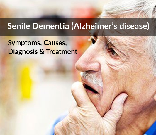 Alzheimer's Disease (Senile Dementia): Symptoms, Causes, Diagnosis & Treatment