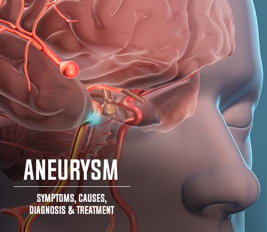 Aneurysm (Aneurysmal Dilatation): Symptoms, Causes, Diagnosis & Treatment