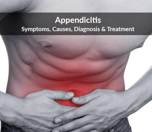 Appendicitis: Symptoms, Causes, Diagnosis & Treatment