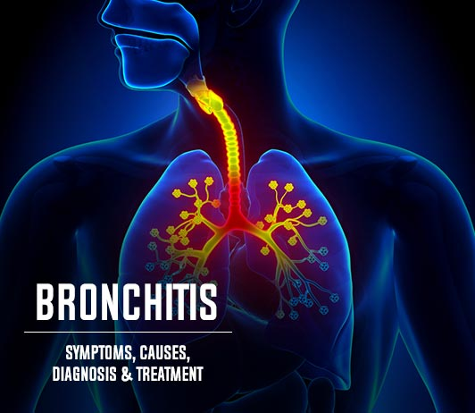 Bronchitis (Inflammation in the Bronchus): Symptoms, Causes, Diagnosis & Treatment