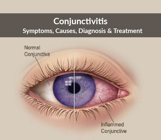 Conjunctivitis (Pink Eye): Symptoms, Causes, Diagnosis & Treatment