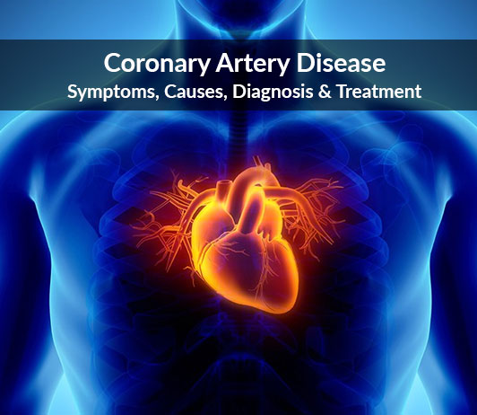 Coronary Artery Disease (Atherosclerotic Heart Disease): Symptoms, Causes, Diagnosis & Treatment
