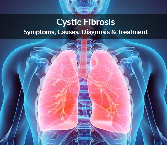 Cystic Fibrosis: Symptoms, Causes, Diagnosis & Treatment