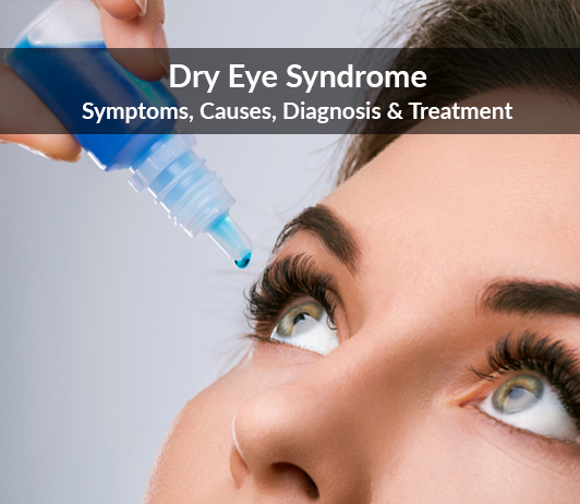 Dry Eye Syndrome (Keratoconjunctivitis Sicca): Symptoms, Causes, Diagnosis & Treatment