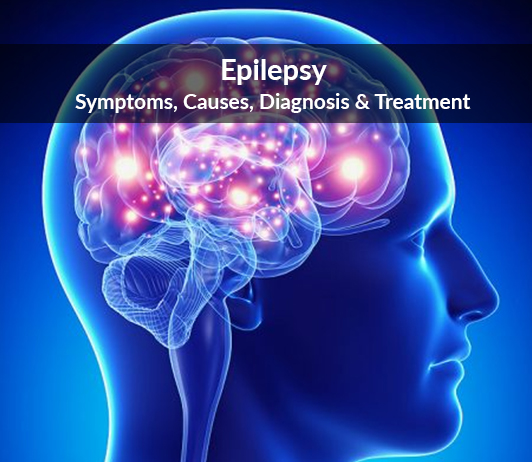 Epilepsy (Seizure Disorder): Symptoms, Causes, Diagnosis & Treatment