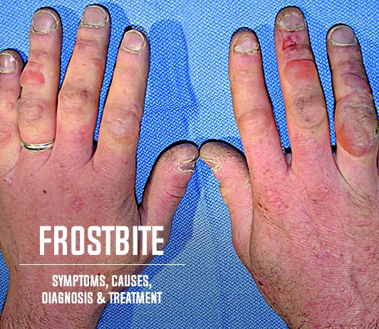 Frost Bite (Freezing Injury): Symptoms, Causes, Diagnosis & Treatment