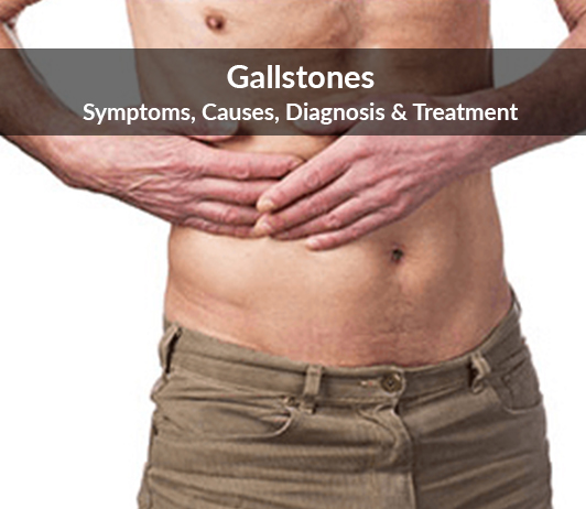 Gallstones (Cholelithiasis): Symptoms, Causes, Diagnosis & Treatment
