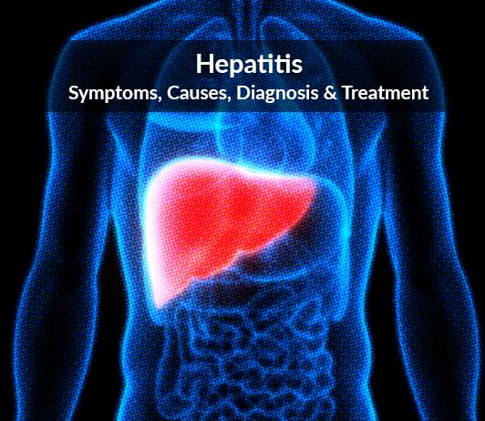 Hepatitis: Symptoms, Causes, Diagnosis & Treatment
