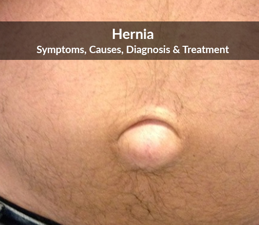 Hernia: Symptoms, Causes, Diagnosis & Treatment