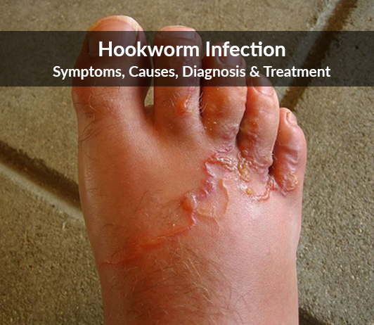 Hookworm infection (Ancylostoma duodenale or Necator americanus infection) : Symptoms, Causes, Diagnosis & Treatment