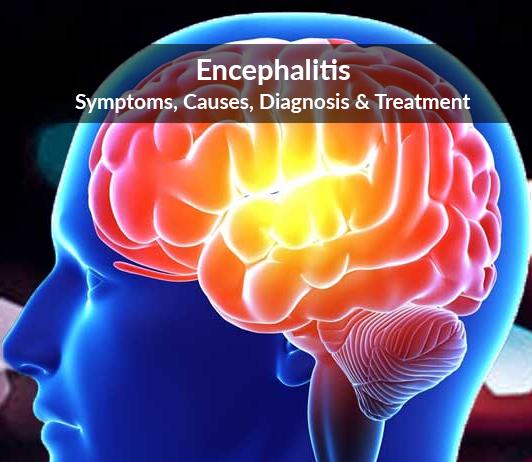 Encephalitis (Inflammation of The Brain): Symptoms, Causes, Diagnosis & Treatment