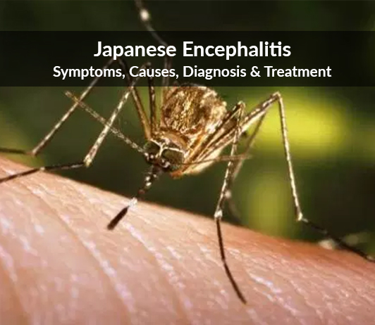 Japanese Encephalitis (Viral infection affecting brain) : Symptoms, Causes, Diagnosis & Treatment