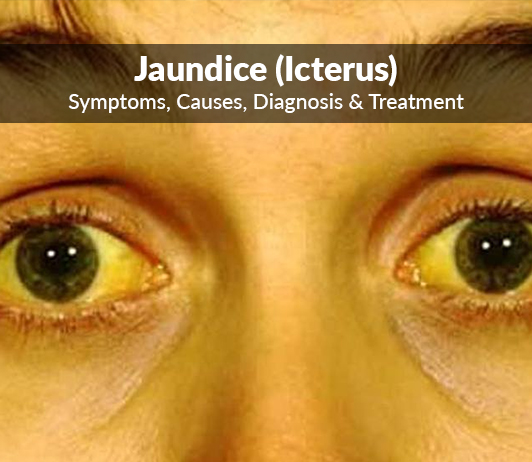 Jaundice (Icterus): Symptoms, Causes, Diagnosis & Treatment