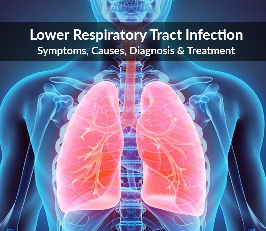Lower Respiratory Tract Infection: Symptoms, Causes, Diagnosis & Treatment