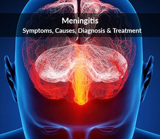 Meningitis: Symptoms, Causes, Diagnosis & Treatment