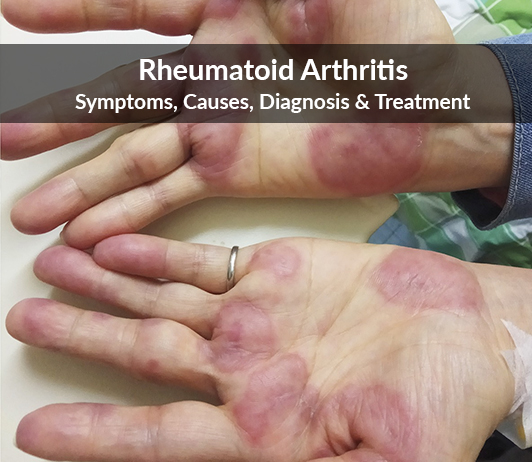 Rheumatoid Arthritis Symptoms Causes Diagnosis Treatment