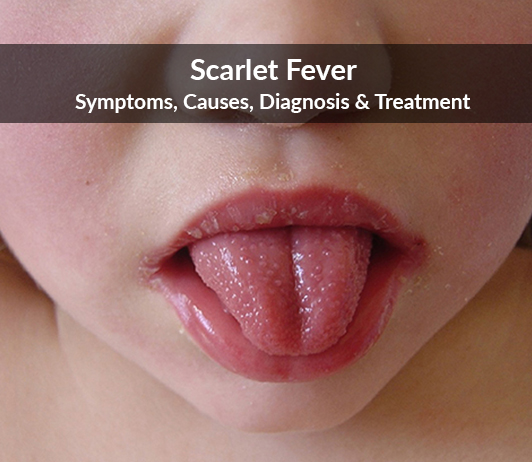 Scarlet Fever (Scarlatina): Symptoms, Causes, Diagnosis & Treatment