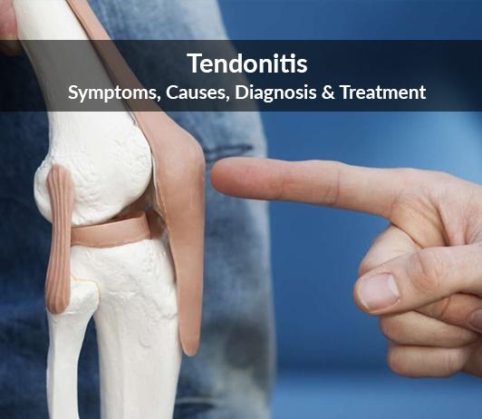 Tendonitis: Symptoms, Causes, Diagnosis & Treatment