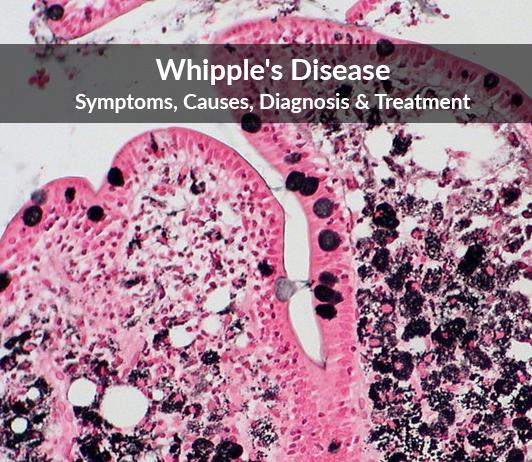 Whipple's Disease: Symptoms, Causes, Diagnosis & Treatment